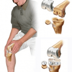 Total Knee Replacement Tips